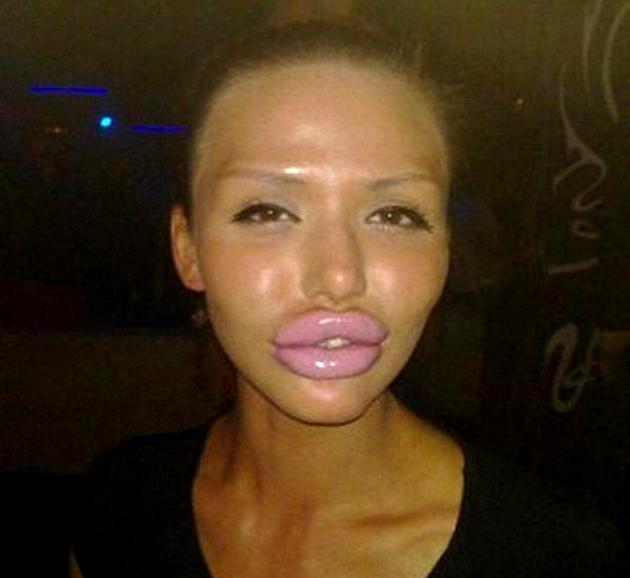 Femei urata cu buze mari